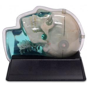 MRI Distortion Phantom for SRS