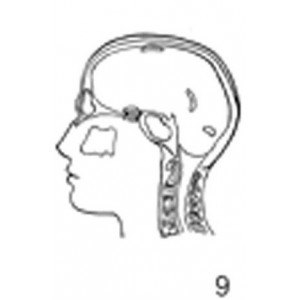 Anatomical Drawings, Left Lateral Sinuses