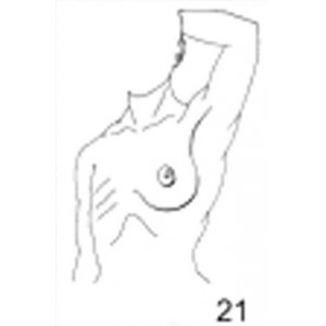 Anatomical Drawings, Left Tangential Breast, 1 Breast