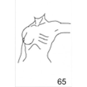 Anatomical Drawings, Left Tangential CW, Arm 90 Degree, 1 Breast