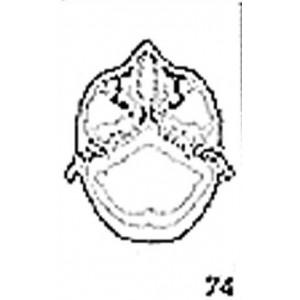 Anatomical Drawings, CT, Atlas