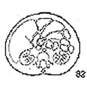 Anatomical Drawings, CT, 1st Lumbar Vertebra