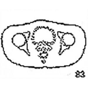 Anatomical Drawings, CT, Uterus